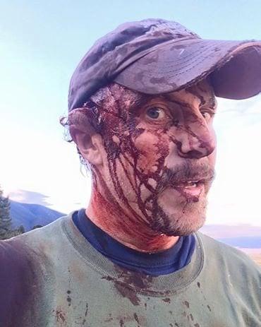 Still from Facebook Video Todd Orr shot following bear attack.