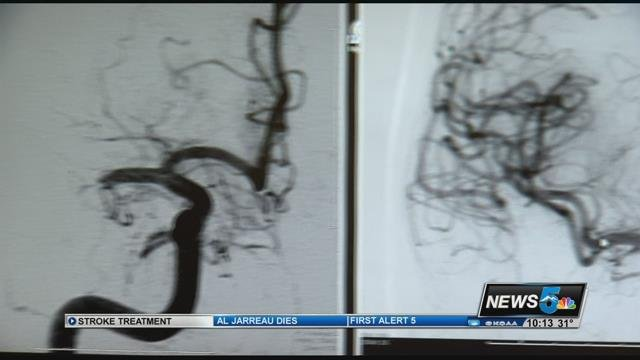 A stroke can be a devastating even deadly health emergency.