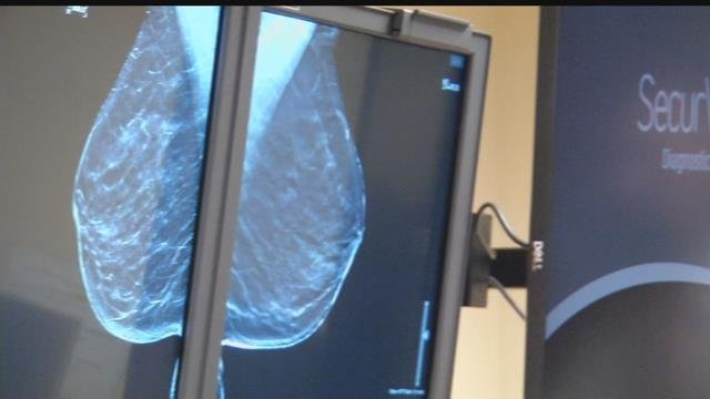 A mammogram can save your life says Dr. Jason Allen , the Medical Director of the Breast Imaging Program at UCHealth Memorial.