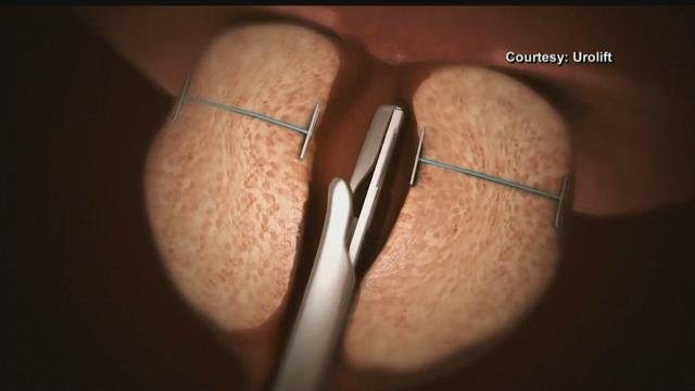 New treatment for enlarged prostate could become the standard of care.
