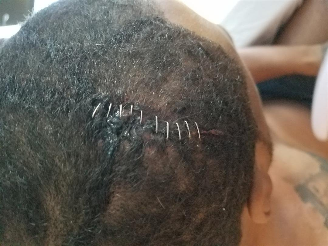 Stitches from head wound suffered by Devin Turrell